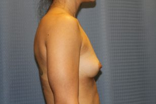 21-breast-augmentation-300cchpgel-3