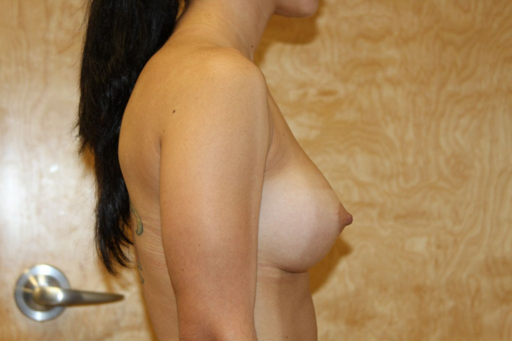 21-breast-augmentation-300cchpgel-6