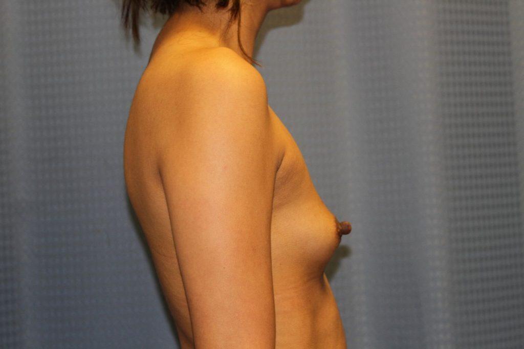 26-breast-augmentation-500ccm-gel-3