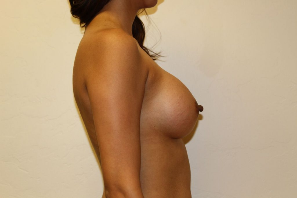 26-breast-augmentation-500ccm-gel-4