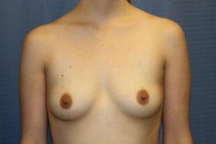 39-breast-augmentation-550ccm-gel-1