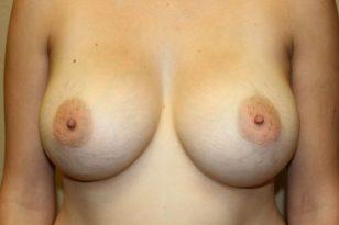 39-breast-augmentation-550ccm-gel-2