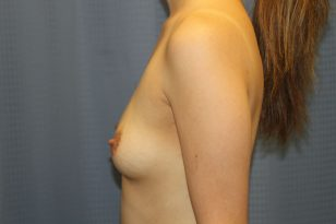 39-breast-augmentation-550ccm-gel-5
