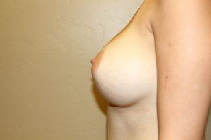39-breast-augmentation-550ccm-gel-6