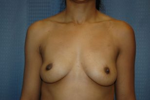 8-breast-augmentation-350ccm-gel-1
