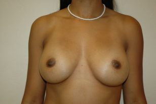 8-breast-augmentation-350ccm-gel-2