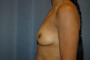 8-breast-augmentation-350ccm-gel-3