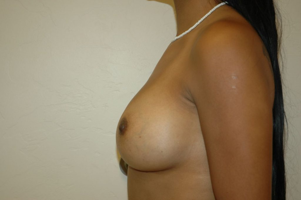 8-breast-augmentation-350ccm-gel-4