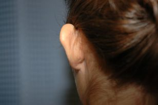 9-ear-reshaping-1