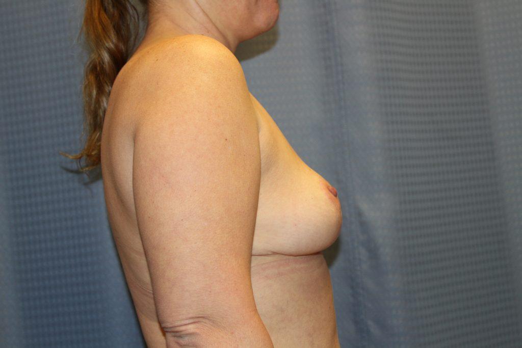 mommy-makeover-side-after